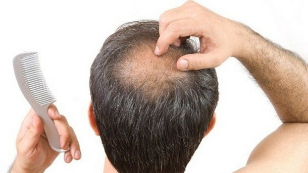 Here is the Cure for Thinning Hair1