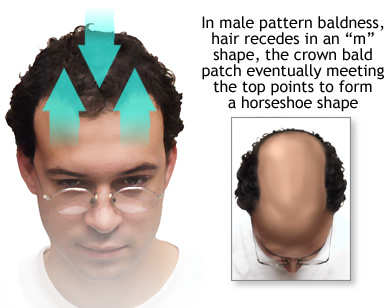Does Receding Hairline From The Side Only Page 2