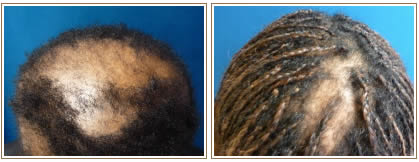 Central_centrifugal_cicatricial_alopecia_black_woman