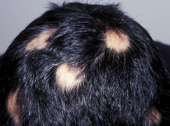 Thinning Hair And Itchy Scalp