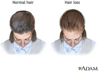 female_pattern_thinning_hair